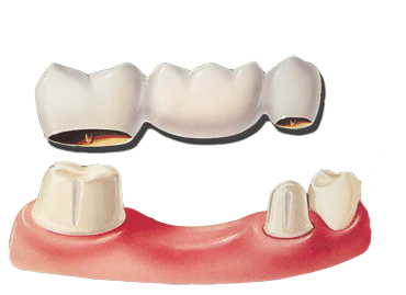 Teeth Replacement with Crowns and Bridges in Hyderabad